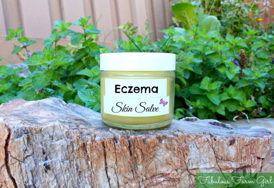 Foods That Are Good For Your Skin Eczema